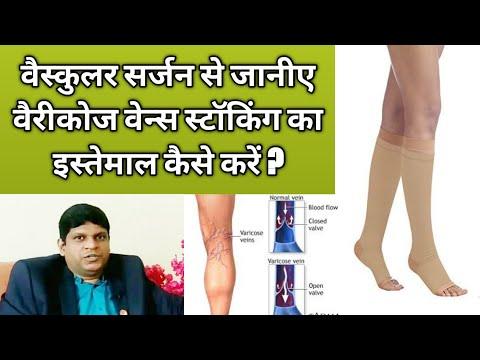 A varikózis eltávolítását a lábakon nevezzük
