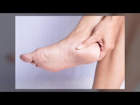 Retinoidy in der Behandlung der Schuppenflechte