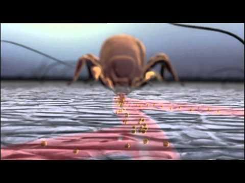 Das infektiöse Ekzem die Erreger
