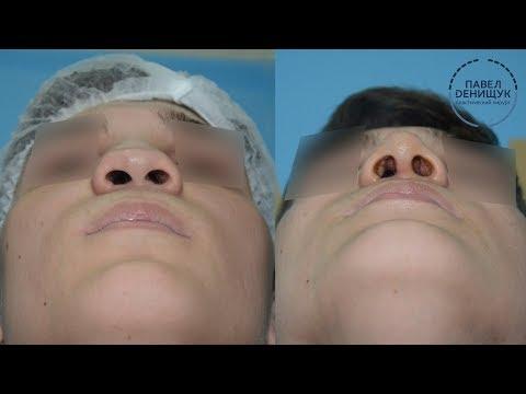 Самый эффективный способ борьбы с морщинами вокруг глаз