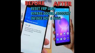 remove frp infinix x606d - Kênh video giải trí dành cho