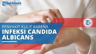Kandidiasis, Penyakit Kulit akibat Jamur Candida Albicans dan Terjadi di Kulit dan Organ Intim
