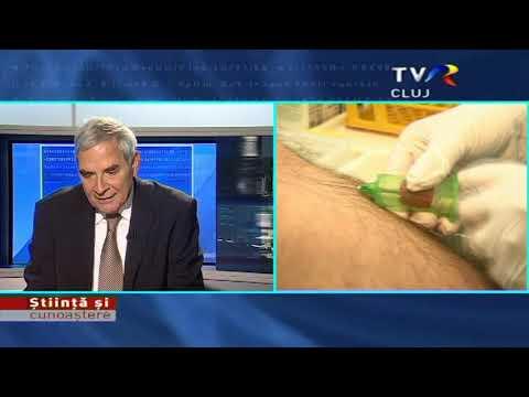 Paracetamol în tratamentul artrozei