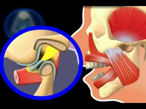 MRI des Knies mit und ohne Kontrast ist der Unterschied