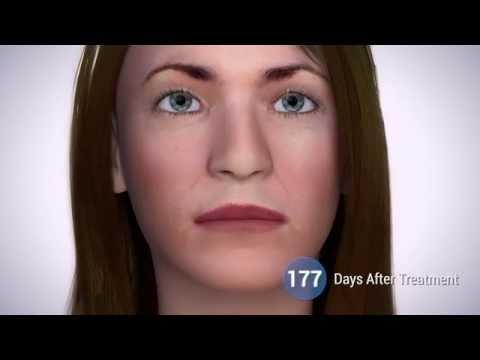 Laser blefaroplastika le siècle oufa