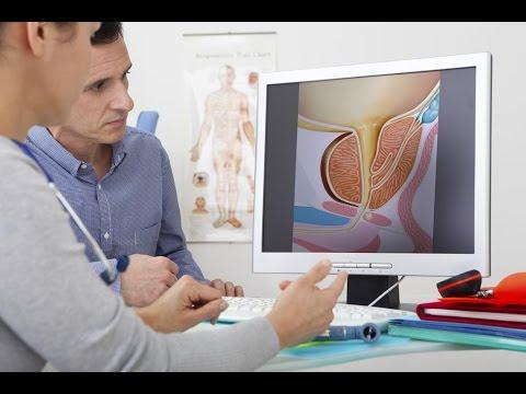 Impotensi prostat