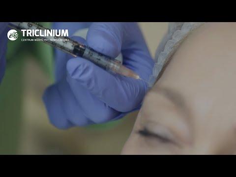 Pigmentacja skóry w rozproszonym toksycznych wola