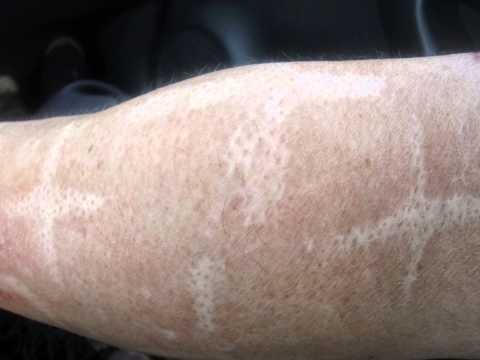 Suppuration su un dito del piede vicino a un trattamento di unghia