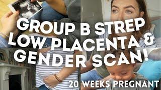 GROUP B STREP, LOW PLACENTA & GENDER SCAN | 20 WEEKS PREGNANT