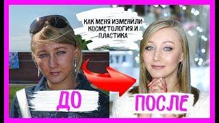 До и после пластики и косметологии. О чем я жалею.
