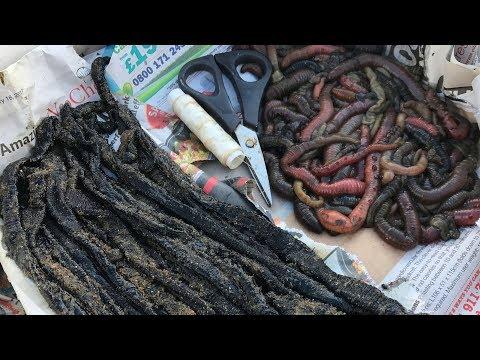 Anong kulay parasites sa feces