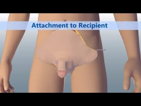 Pentru a restabili rapid erecția