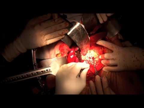 Ideale per la pressione sanguigna