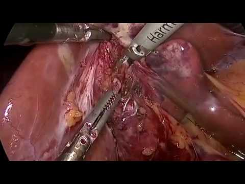Laparoscopic Completion Cholecystectomy After Prior Laparoscopic Subtotal Cholecystectomy