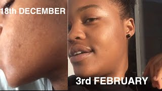 HOW TO| GET RID OF FACE RASH ON A BUDGET| SKIN CARE | ZAMBIAN YOUTUBER🇿🇲