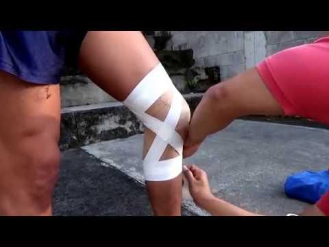 Qué hacer si no hay un cartílago en la articulación de la rodilla
