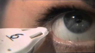 Keratoconjunctivitis Sicca