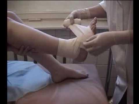 Повязка на голеностопный сустав