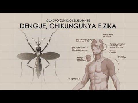 Diferença entre Dengue, Chikungunya e Zika