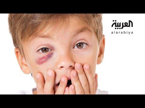 العرب اليوم - شاهد: طريقة لحماية عيون الأطفال من هذه الألعاب