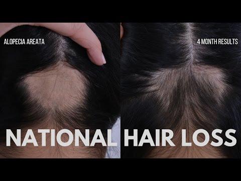 Hair oil matrix Minsk