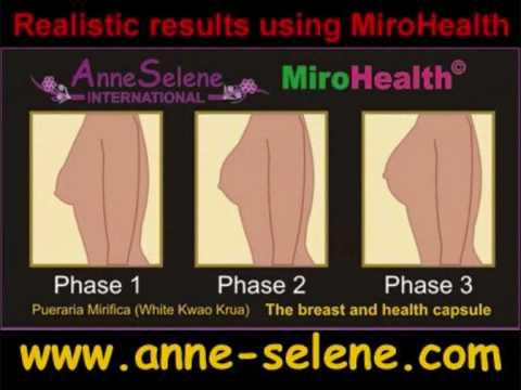 Die Formen für silikonowoj die Brüste