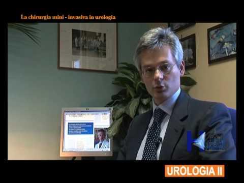 Infiammazione della prostata
