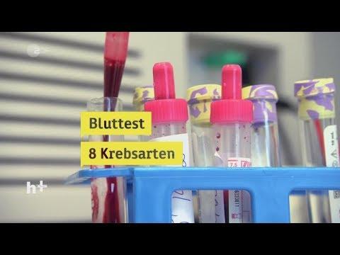 Was nützlich Kräuter, die für Patienten mit Diabetes nützlich sind