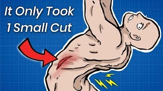 How 1 Small Cut Can Break Your Spine