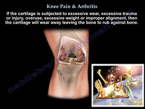 Video Knee Pain , Knee arthritis treatment  - Everything You Need To Know - Dr. Nabil Ebraheim, M.D.