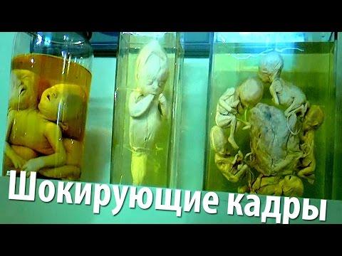 16+ Коллекция уродцев Петра I (Нифедыч в