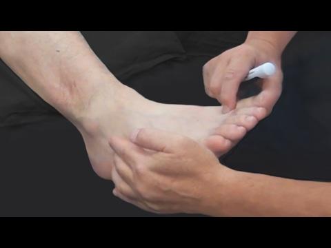 Лечение суставов аммиаком