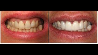 Descargar Mp3 De Como Clarear Os Dentes Com Casca De Gratis