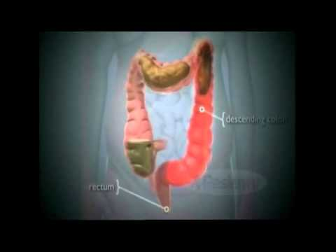 Cara menghapus bergumam dalam perut