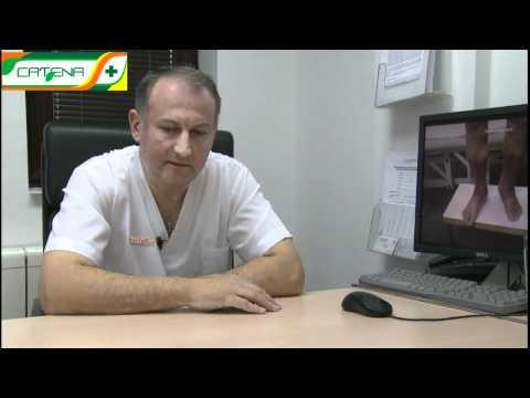Care a vindecat venele varicoase de rețete populare