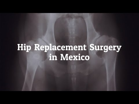Tips to Find the Best Hip Replacement Surgery in Mexico