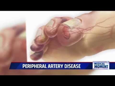 Video Symptoms and Treatments for Peripheral Artery Disease (PAD)