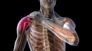 Como sanar el dolor de huesos