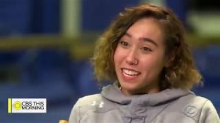 UCLA gymnast Katelyn Ohashi overcomes pain to perform electrifying routines