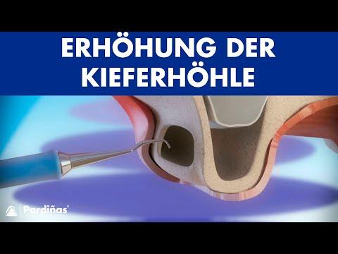 Implanty die Erhöhung der Penis