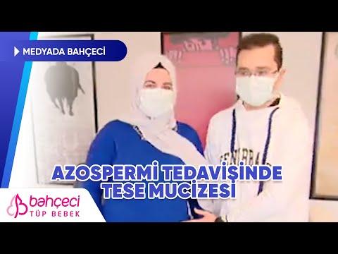 Azospermi Tedavisinde TESE Mucizesi | Show TV Ana Haber | Bahçeci Tüp Bebek