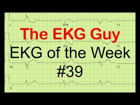 EKG of the Week #39