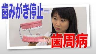 歯みがき停止から歯周病への道のり