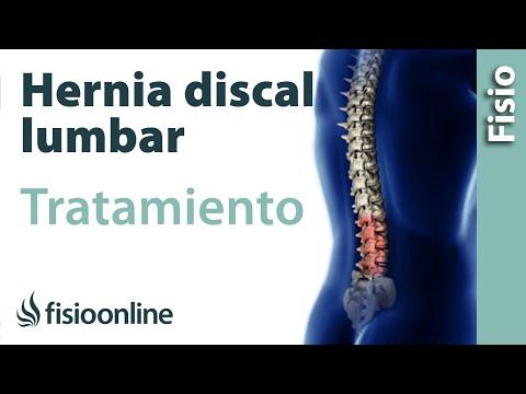 Tratamiento osteocondrosis intervertebral común