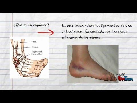 Problema en osteocondrosis respiración