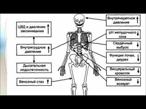 Интраабдоминальная гипертензия: состояние проблемы (проблемная лекция)