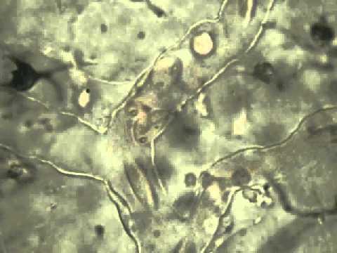 Pillole da varicosity di risposte di vene