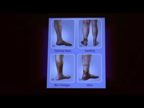 Trombosi di vene profonde delle estremità più basse ad anziani