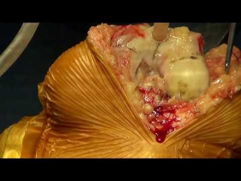 Die Verbindung zwischen dem Humerus und der Scapula kugelig