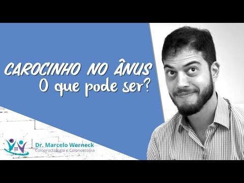 Carocinho no ânus. O que pode ser? | Dr. Marcelo Werneck